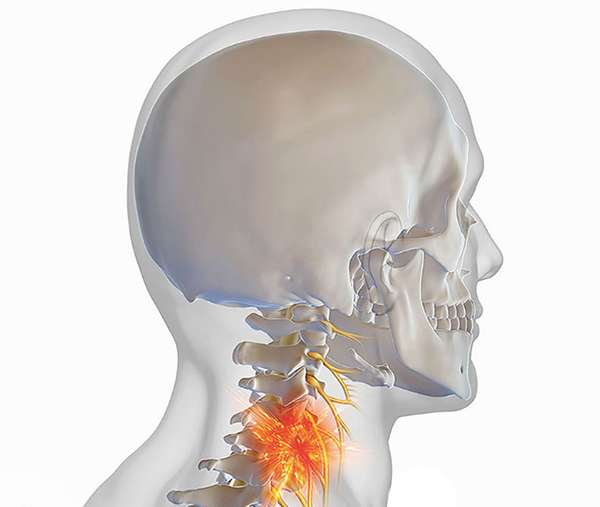 Боль вызывает глубокий спазм мышц