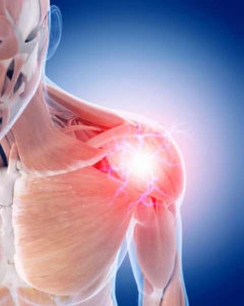 Что такое импиджмент синдром плечевого сустава симптомы диагностика методы лечения