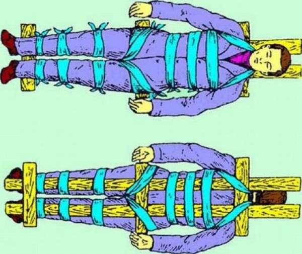 Транспортировка пациента с травмой позвоночника: как передается, признаки и лечение, средства, схема