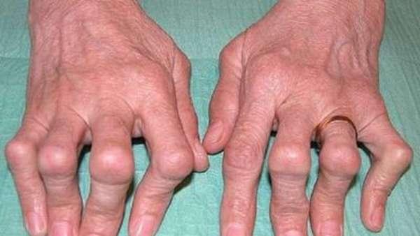 Болезнь суставов как называется болезнь когда thumbnail