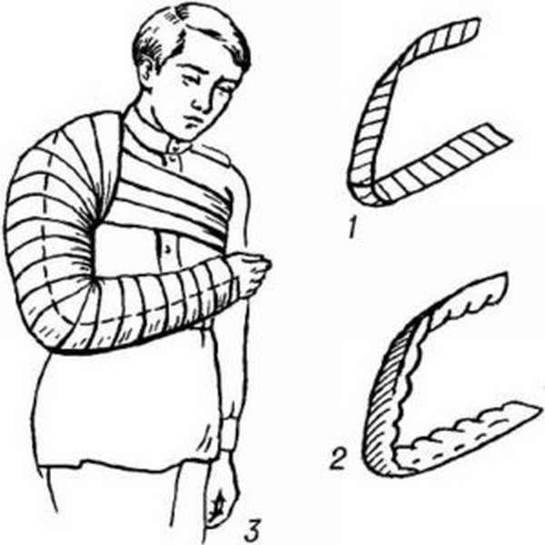 Иммобилизацию каких суставов производят при переломе плечевой кости