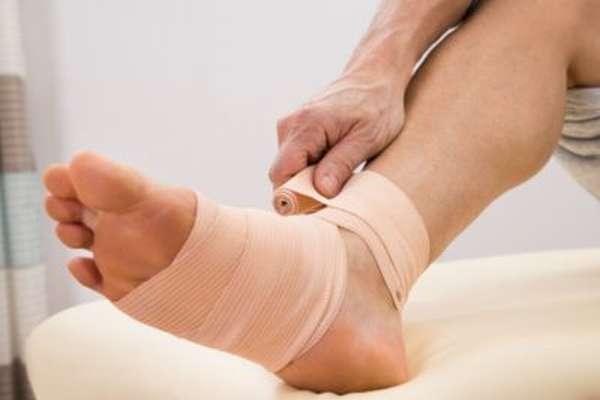 Вывих ноги фото — Все про суставы