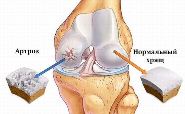 Комплекс упражнений для пожилых людей при артрозе коленных суставов