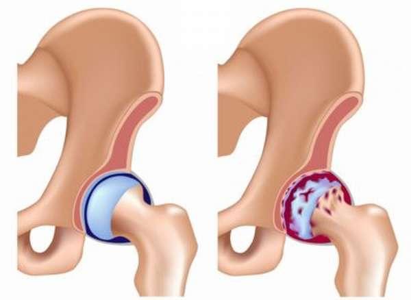 Какие лекарства принимать при артрозе тазобедренного сустава