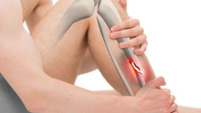 Сколько нужно ходить в гипсе при переломе ноги