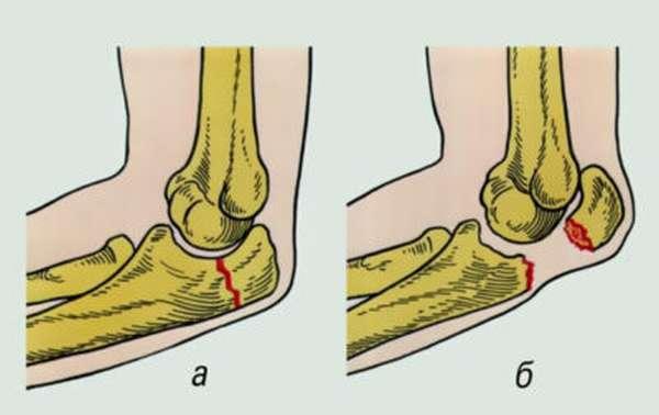 Отрыв шиловидного отростка локтевой кости