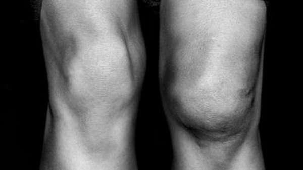 Опухло колено без ушиба и болит: что это может быть и как снять боль