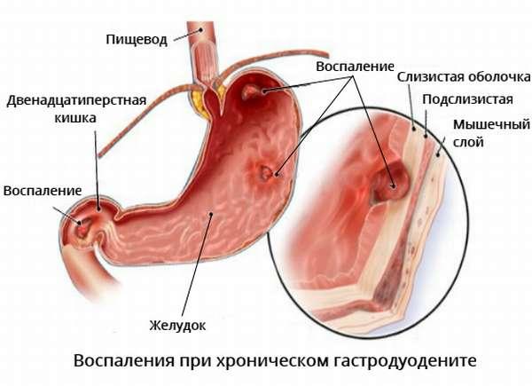 Хронический гастродуоденит и обострение заболевания