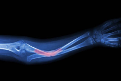 Перелом лучевой кости со смещением лечение сколько носить гипс