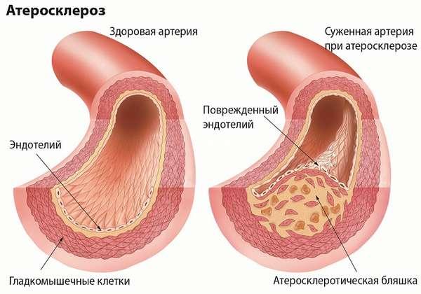 Что собой представляет атеросклероза аорты сердца