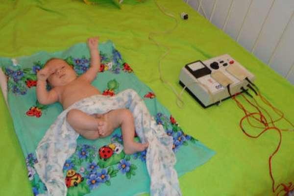 Электрофорез для грудничка на тазобедренные суставы