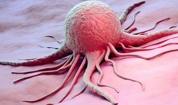 Колонка Фергюса Уолша. У четверых из десяти диагноз – рак