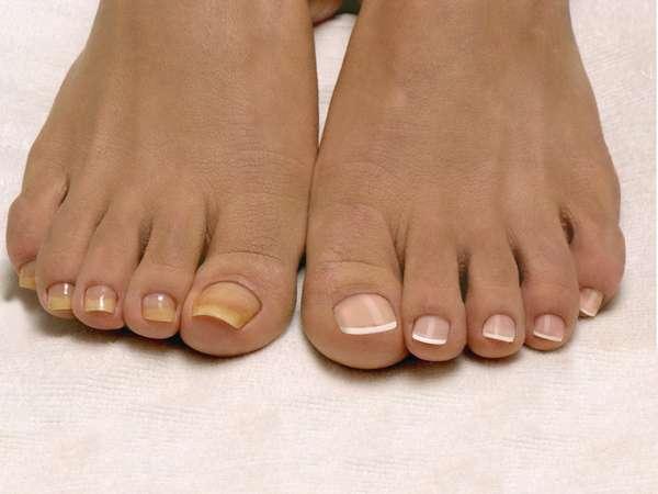 Ногти на ногах как показатель риска рака легких