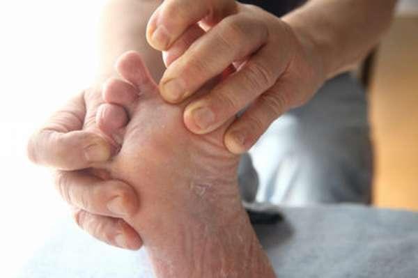 Треснул палец на ноге что делать — Здоровье ног