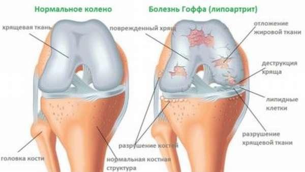 Болезнь гоффа коленного