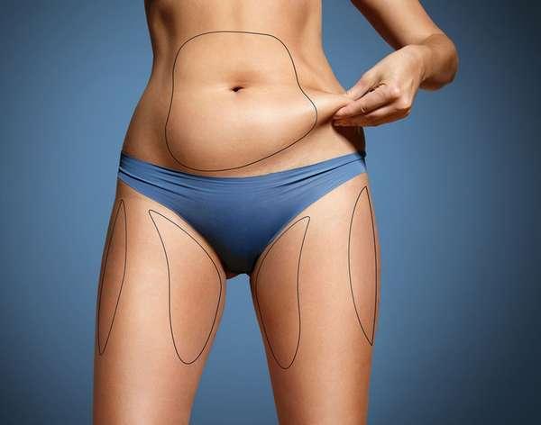 Миф 13: Все жировые отложения одинаковы
