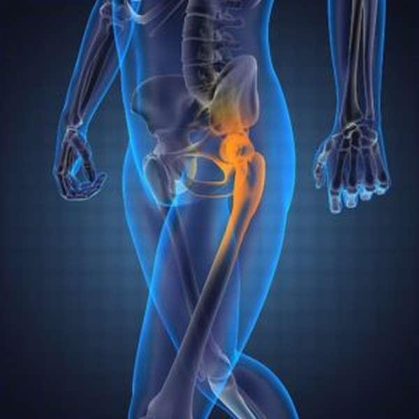 Ушиб бедра и тазобедренного сустава: симптомы и лечение при падении