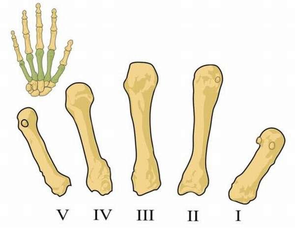 Сколько носить гипс при переломе пястной кости без смещения