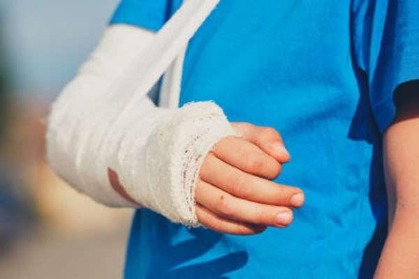 Перелом предплечья со смещением и без лечение реабилитация