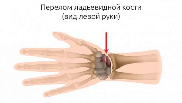 МКБ 10 Перелом первой пястной кости