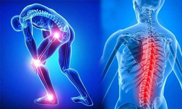 Крепкие кости: как избежать проблем?