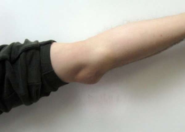 Лечение бурсита локтевого сустава медикаментозное лечение