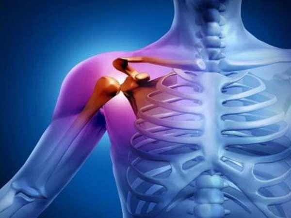 Воспаление сухожилий плеча — Все про суставы