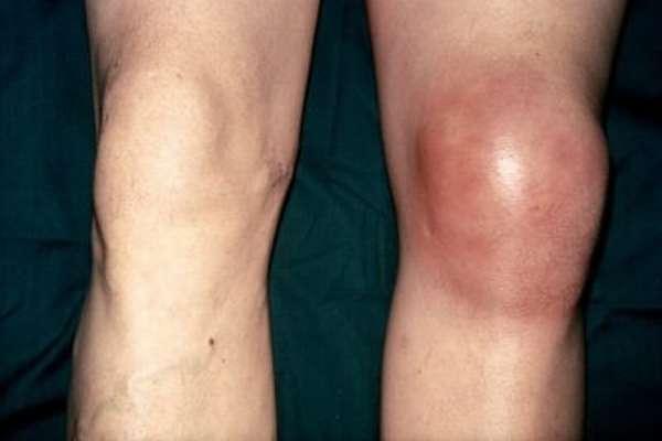 Осложнения после артроскопии коленного сустава