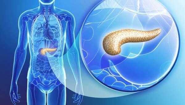 Диета при панкреатите поджелудочной железы: что нельзя