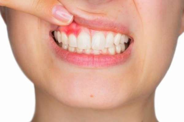 Остеомиелит челюсти: лечение, симптомы острой и хронической формы, дифференциальная диагностика воспаления костной ткани зуба
