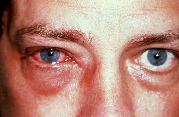 Опухшие глаза: конъюнктивит или инфекция?
