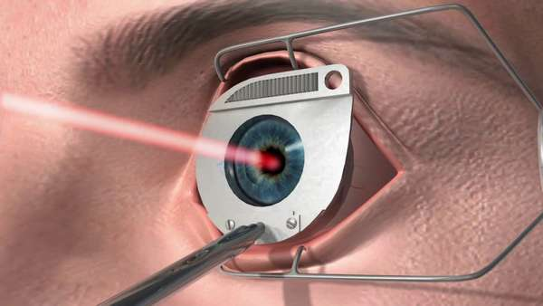Лазер против катаракты