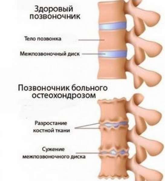 Болезнь суставов как называется болезнь когда