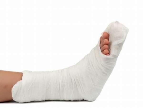 Перелом таранной кости: лечение, реабилитация, последствия