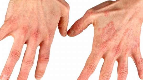 Диета при дерматите на руках