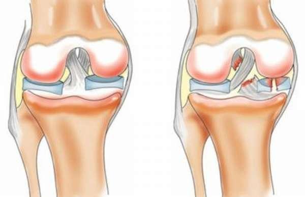 Могут ли болеть связки коленного сустава