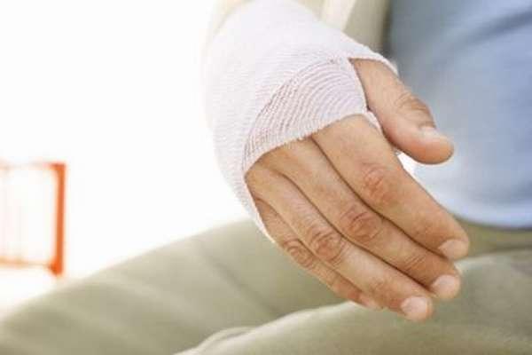 Лучевая кость на руке перелом фото