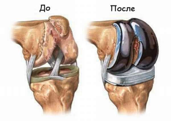 Отсутствие жидкости в коленном суставе диагноз