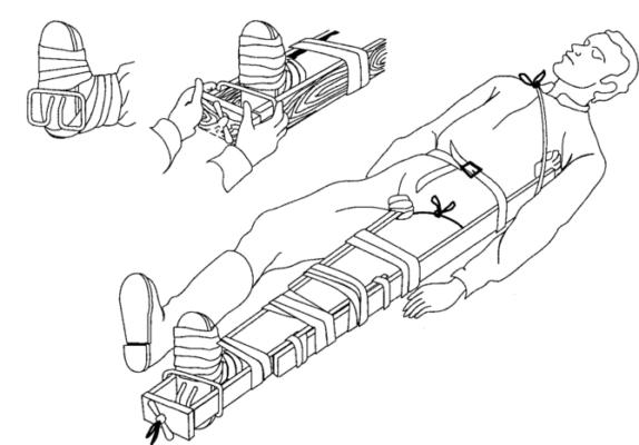 Как наложить шину при переломе костей голени - разновидности и правила