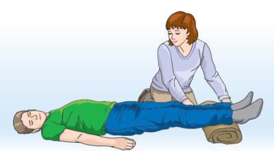Первая помощь при сильном ушибе бедра