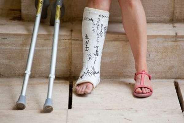 Перелом лодыжки со смещением и без сколько ходить в гипсе