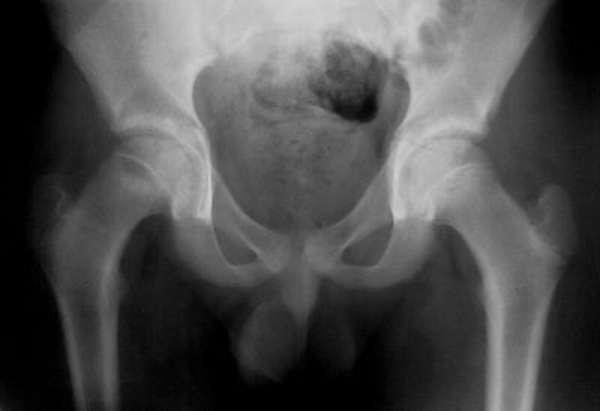 МРТ или рентген коленного сустава