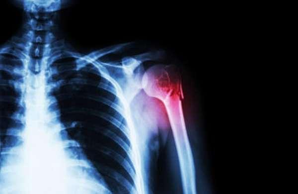 Хирургический перелом шейки плеча у пожилых людей сроки восстановления